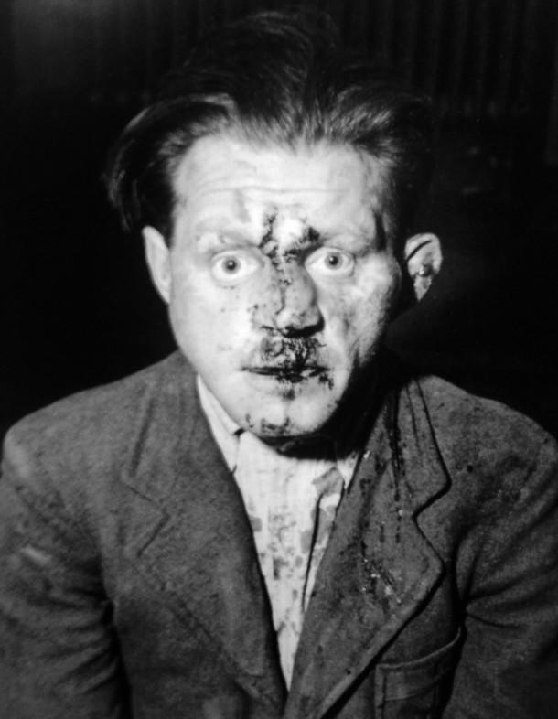 Sin título. Guardia de Buchenwald rescatado de las manos de sus antiguos prisioneros, Lee Miller (1945).